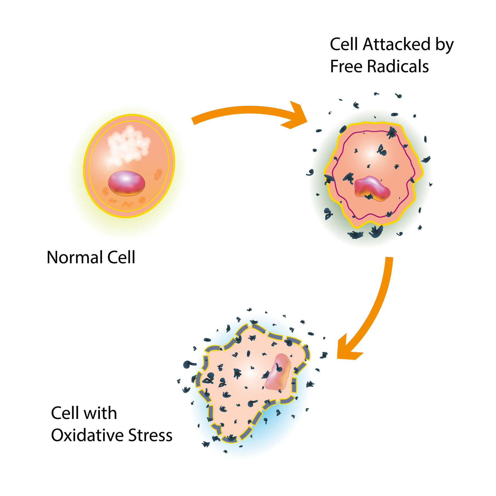 Graphic on how a normal cell gets attacked by free radicals, producing a cell with oxidative stress